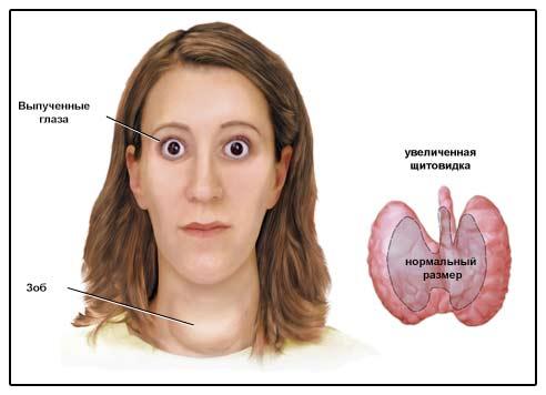 Изображение признаков диффузного токсического зоба.