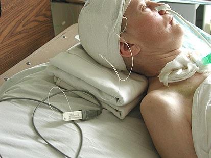Где измерить внутричерепное давление казань